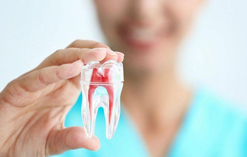 Endodoncia - Guadalupe - Murcia   Clínica Dental Guadalupe