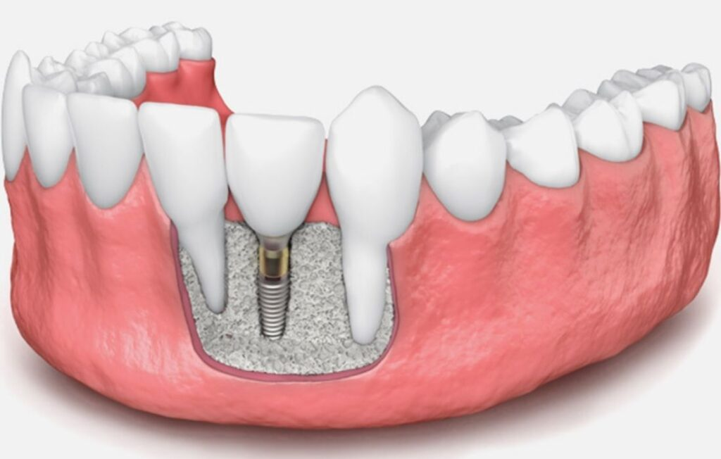 Regeneración Ósea Guiada - Guadalupe - Murcia | Clínica Dental Guadalupe