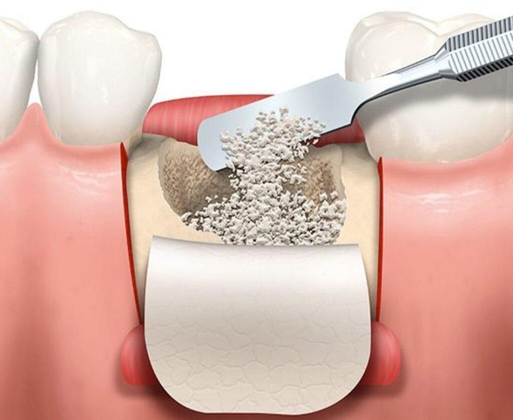 Técnica de Regeneración Ósea Guiada - Guadalupe - Murcia |Clínica Dental Guadalupe