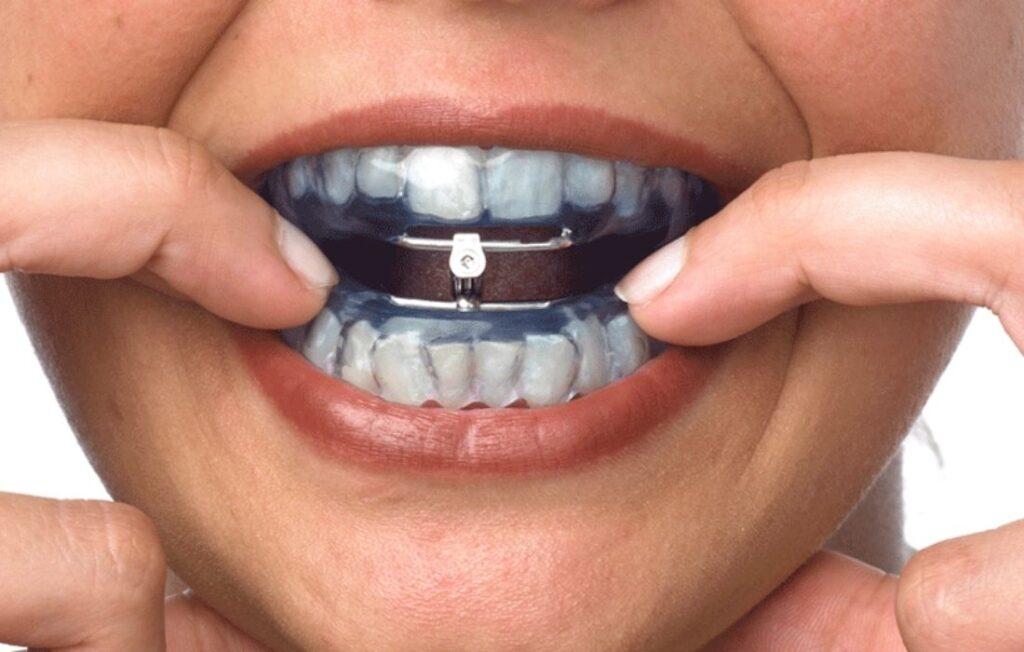 Tratamiento Apnea del Sueño - Guadalupe - Murcia | Clínica Dental Guadalupe