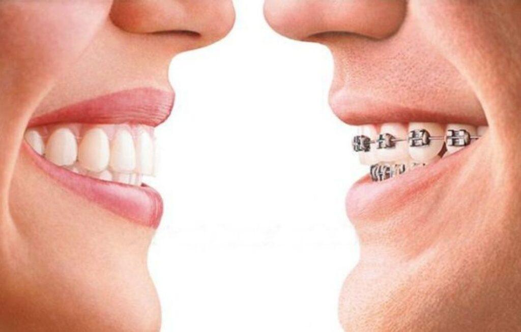 Alineadores Transparentes - Clínica Dental Guadalupe