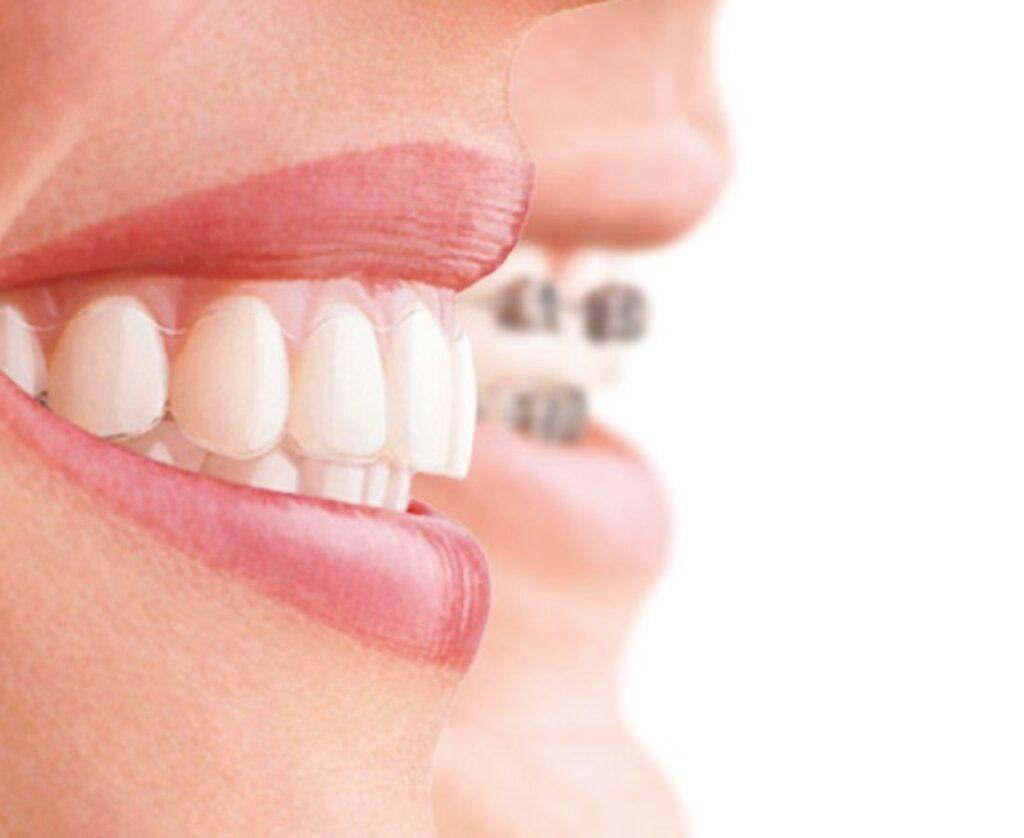 Ortodoncia Invisible en Guadalupe, Murcia - Dr. Óscar Eráns | Clínica Dental Guadalupe