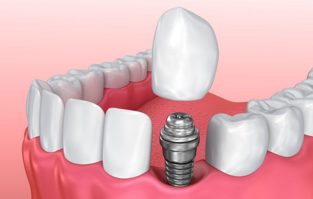 Tipos Implantes Dentales - Guadalupe - Murcia | Clínica Dental Guadalupe